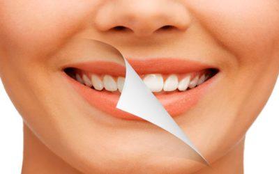 Blanqueamiento dental: ¿lo necesito?