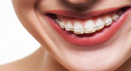 implantes dentales carga inmediata