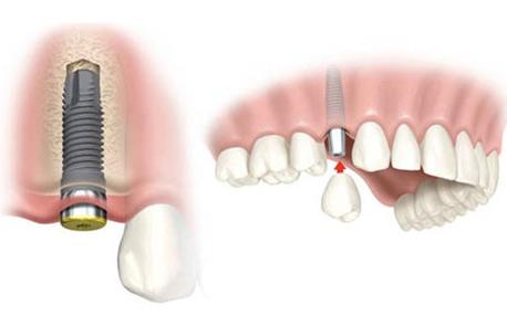 Implantes dentales Barcelona: técnica de carga inmediata