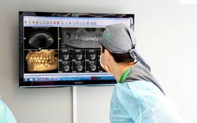 TAC Dental (Tamografía Computerizada Dental de Haz Cónico)
