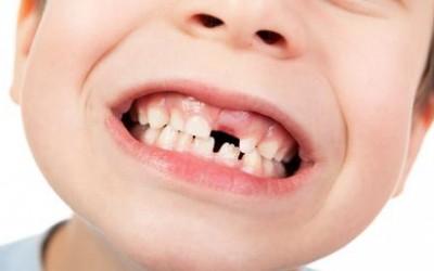 Importancia de los dientes de leche