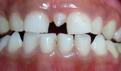 ¿Tienes un diente extra?