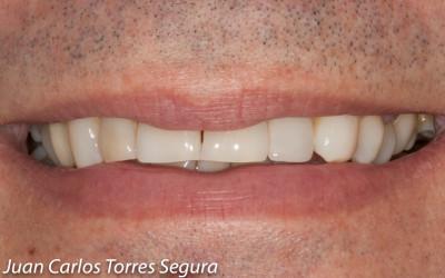 Nuevo caso del Doctor Torres: extracción del resto radicular, regeneración ósea y la colocación de un implante dental
