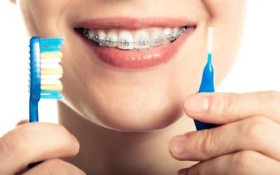 ¿Llevas ortodoncia?  Descubre como cepillarte con nuestra guía