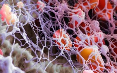 Usos del plasma rico en plaquetas en la odontología