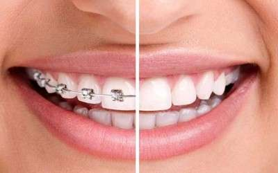 El retratamiento de ortodoncia