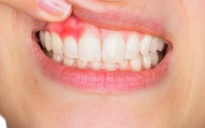 Cosas que no sabías de la gingivitis