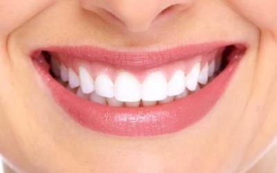 Tipos de diseños de sonrisas
