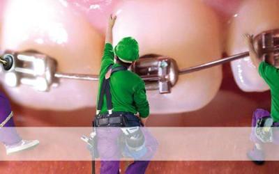 Tengo enfermedad periodontal, ¿puedo llevar ortodoncia?