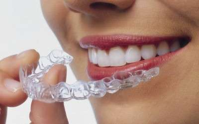 Ortodoncia Digital: Sistema Invisalign