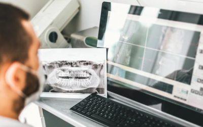 ¿Qué prótesis podemos realizar por medio del sistema digital?