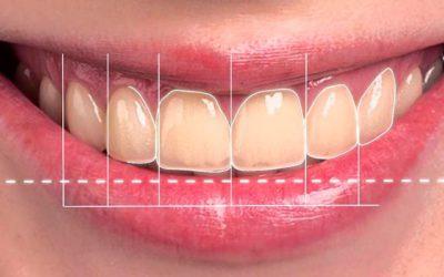 Ventajas del diseño digital de la sonrisa