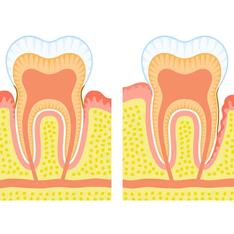 Periodontitis y diabetis