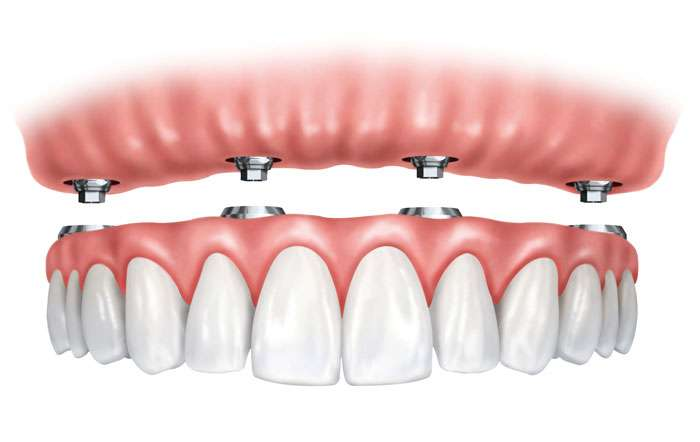 Implantes Dentales All on 4