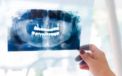 ¿Cuándo no es posible poner un implante dental?