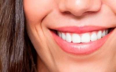 Odontología exprés: Carillas dentales en 1 día