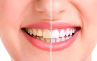 ¿Cómo alargar un blanqueamiento dental?
