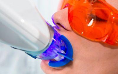 ¿Cuando no se recomienda un blanqueamiento dental?