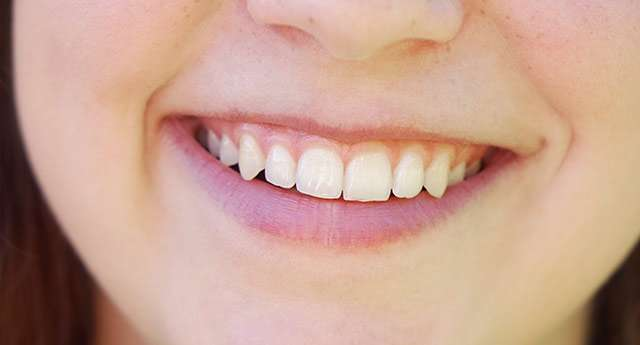 implantes dentales all on four