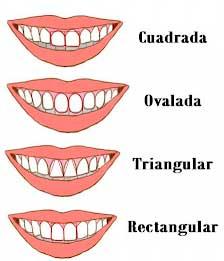 Características generales de los dientes